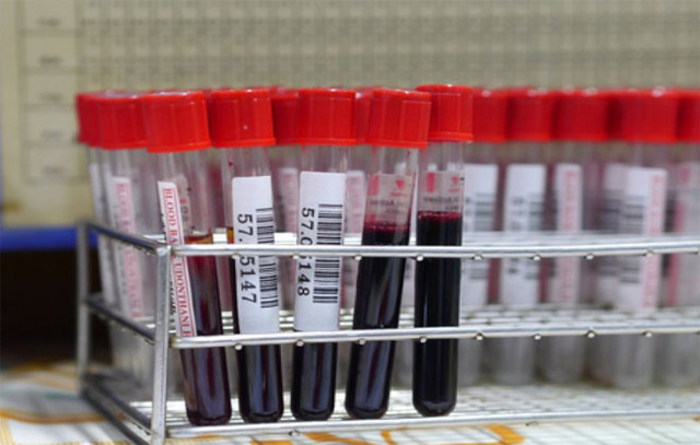 Какая самая распространенная группа крови в мире?