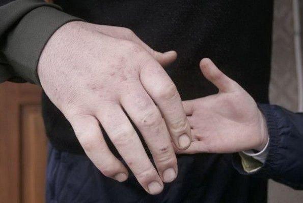Самые длинные руки в мире, и кто их владелец