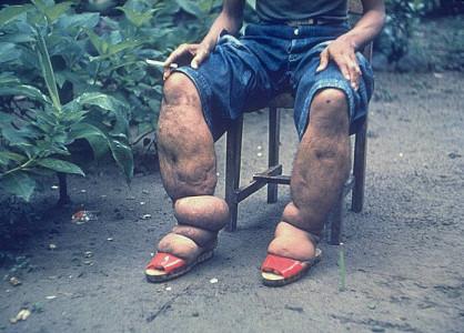 Самая страшная болезнь в мире: какие заболевания не могут вылечить?