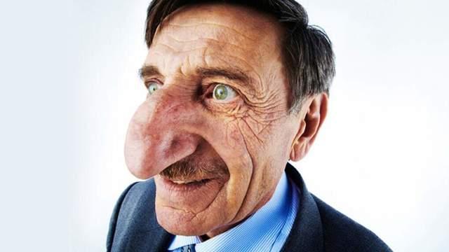 Самый длинный и большой нос в мире и его фото