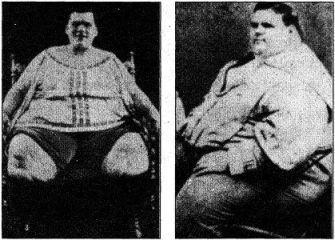 Самый тяжелый человек в мире: топ самых толстых людей на земле