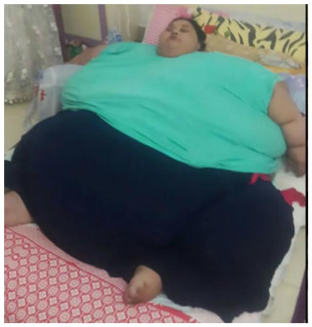Самые толстые люди мира, наиболее тучные личности на планете земля